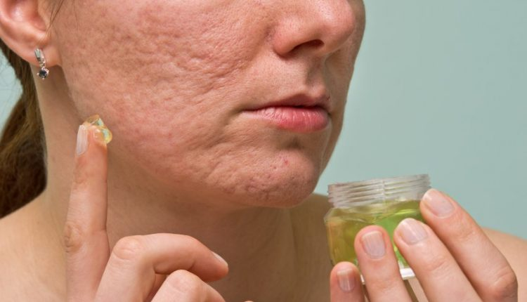 Top 7 Amazing Essential Oils For Scars Treatment