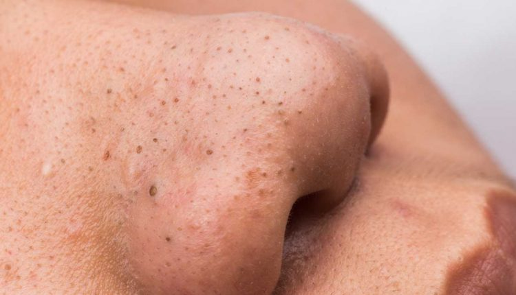 4 Perfect Ways on How to Treat Blackheads Externally