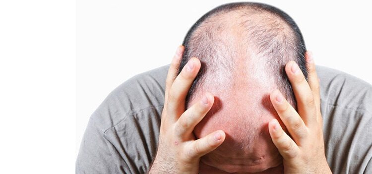 7 Psychological Effects of Hair Loss (Alopecia) You Should Know