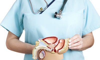 Testicular Varicocele